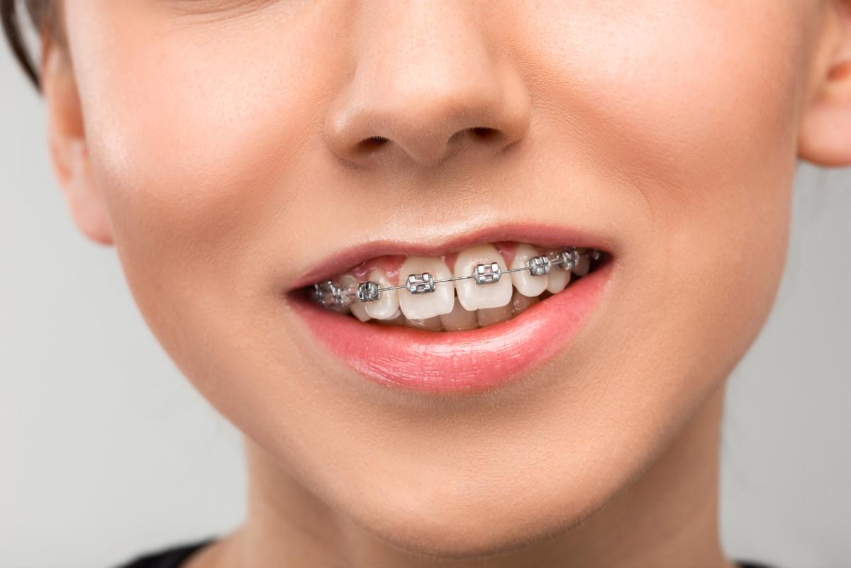 Aparat Dentar Clasic
