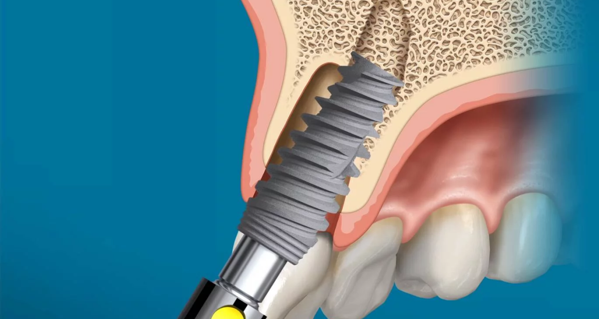 https://www.lifedentalspa.ro/wp-content/uploads/2021/02/Implant-Nobel-Biocare-1200x640.png