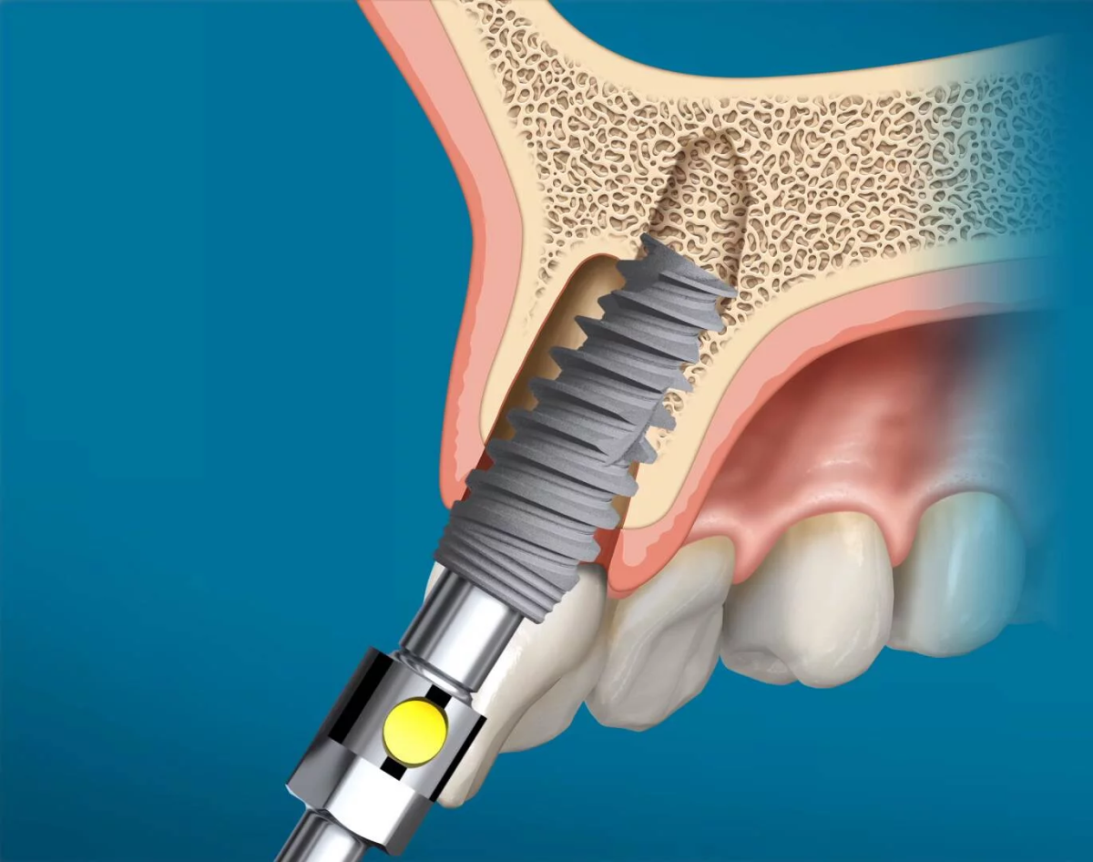 https://www.lifedentalspa.ro/wp-content/uploads/2021/02/Implant-Nobel-Biocare.png