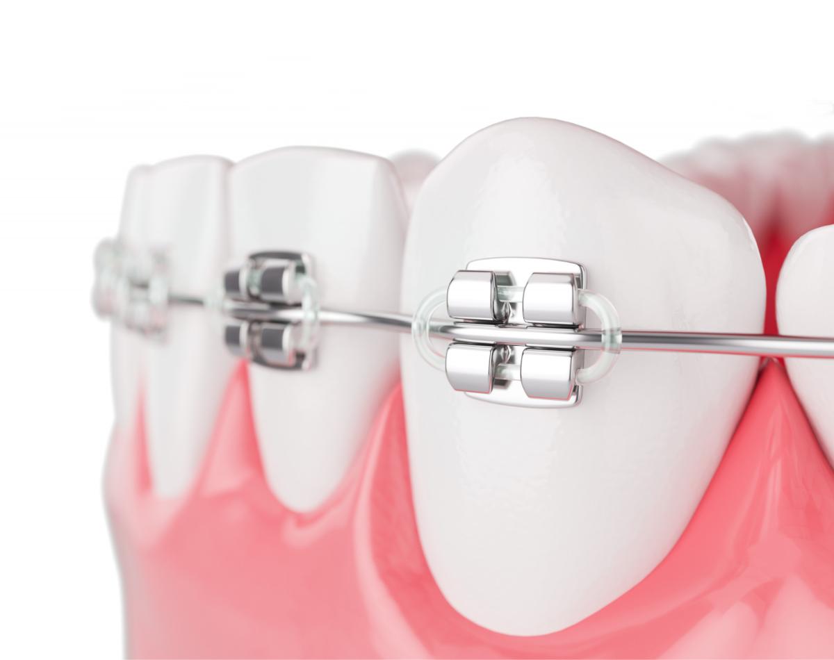 https://www.lifedentalspa.ro/wp-content/uploads/2021/02/Ortodontie-Aparat-Dentar-Hero.png
