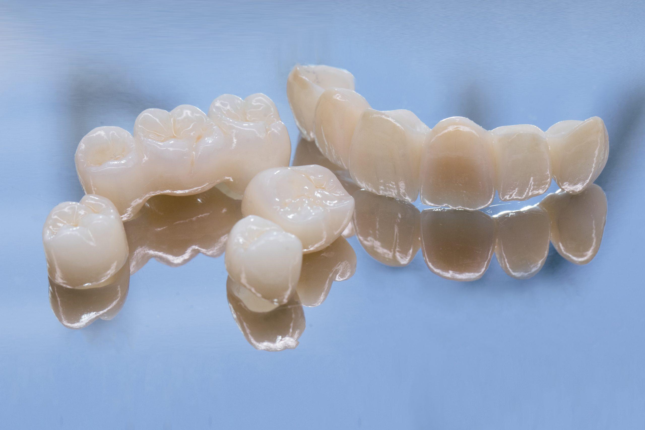 Coroane Dentare Zirconiu si Ceramica