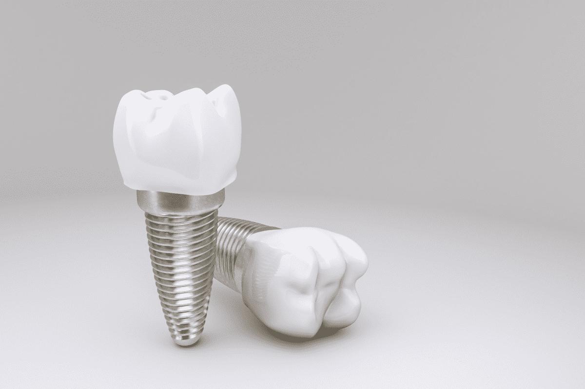 Implant Dentar Laser