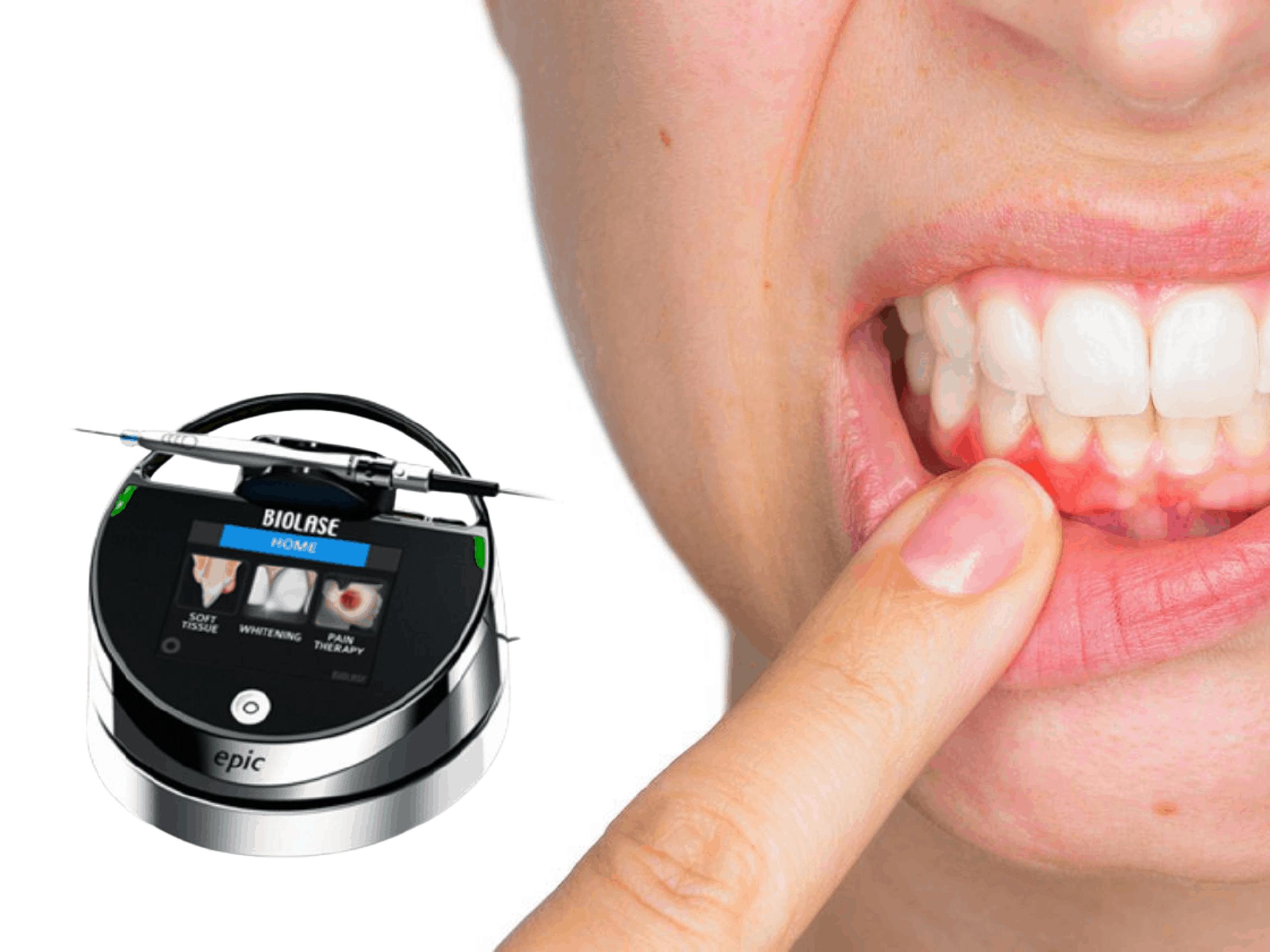 https://www.lifedentalspa.ro/wp-content/uploads/2021/03/Tratamentul-gingivitei-cu-laserul-serviciu-1.png