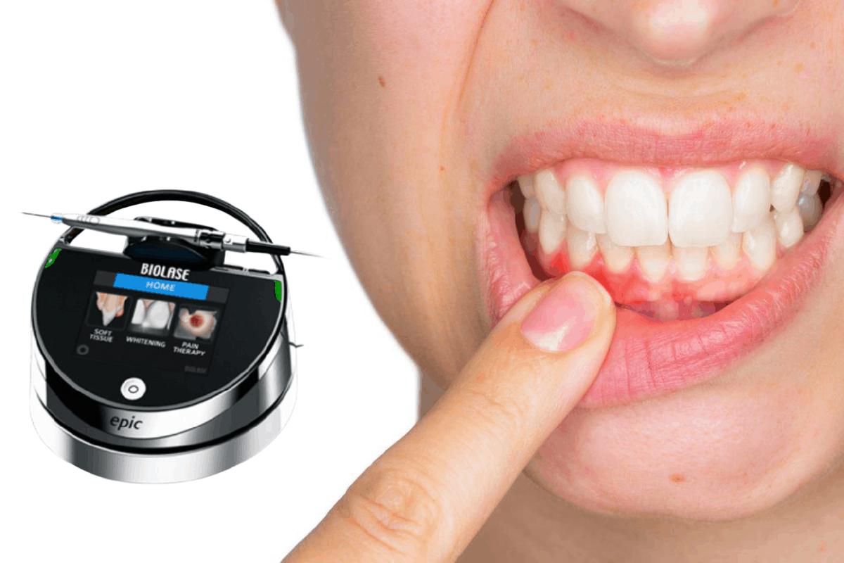 Tratamentul gingivitei cu laserul