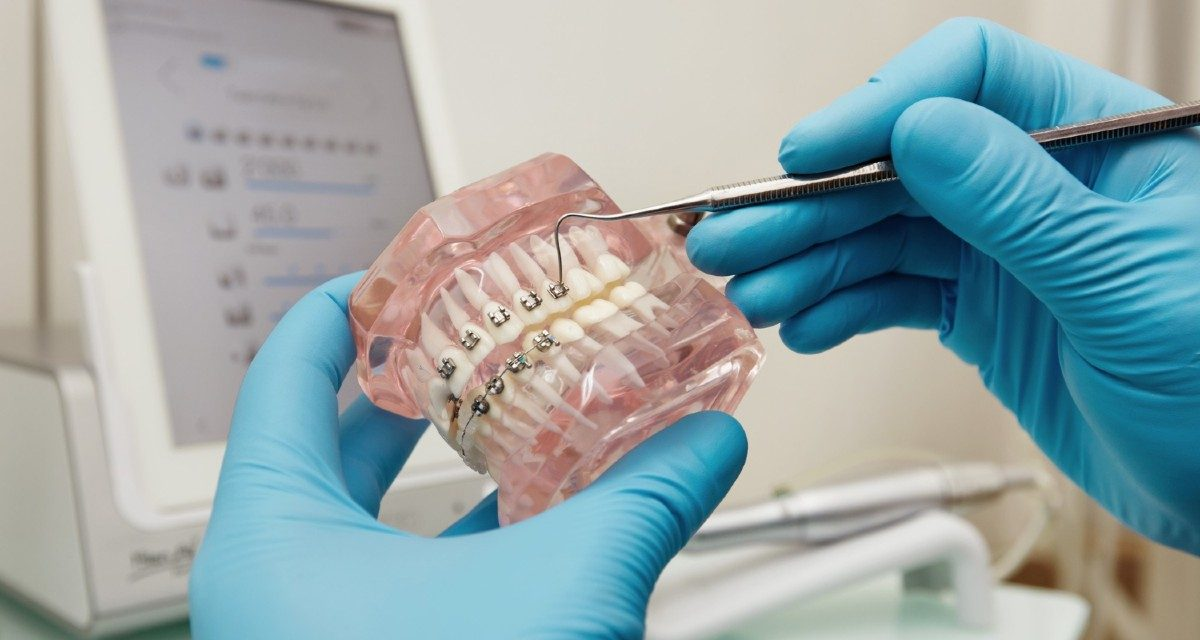 https://www.lifedentalspa.ro/wp-content/uploads/2021/04/Sfaturi-de-ingrijire-a-aparatelor-dentare-1200x640.jpg
