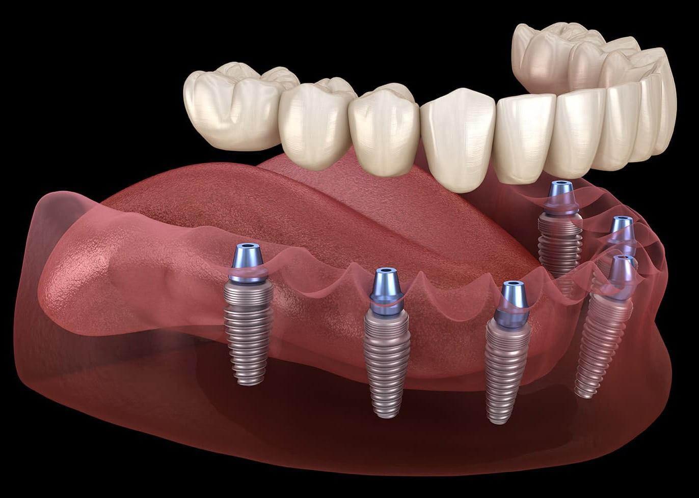 https://ml2sycfl8irw.i.optimole.com/kPMk_hE-E3B3-RRy/w:1280/h:640/q:75/rt:fill/g:ce/https://www.lifedentalspa.ro/wp-content/uploads/2021/05/implante-dental-carga-inmediata.jpg