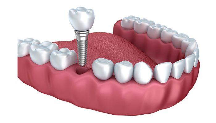 https://ml2sycfl8irw.i.optimole.com/kPMk_hE-fyjfXsuc/w:auto/h:auto/q:75/https://www.lifedentalspa.ro/wp-content/uploads/2021/06/dental-implant-700x399-1.jpg