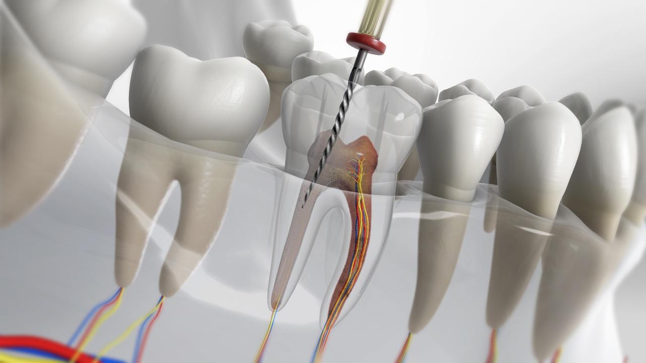 https://www.lifedentalspa.ro/wp-content/uploads/2021/07/Cand-ai-nevoie-de-tratament-de-canal-Top-5-semne-ca-ai-nevoie-de-un-endodont.jpg