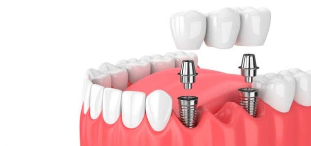 https://www.lifedentalspa.ro/wp-content/uploads/2021/07/Care-sunt-cele-mai-des-intalnite-tratamente-stomatologice-in-protetica-dentara.jpg