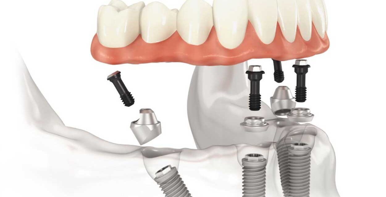https://www.lifedentalspa.ro/wp-content/uploads/2021/09/All-on-4-malo-clinic-1-1-1250x640.jpg