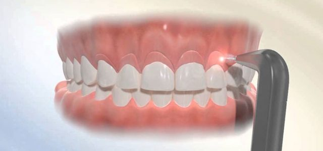 https://www.lifedentalspa.ro/wp-content/uploads/2021/09/gingivectomia1-640x300-1.jpg