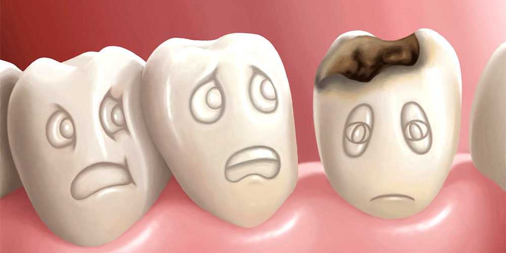 https://www.lifedentalspa.ro/wp-content/uploads/2021/10/La-Caries-Dental-1000x500-1.jpg