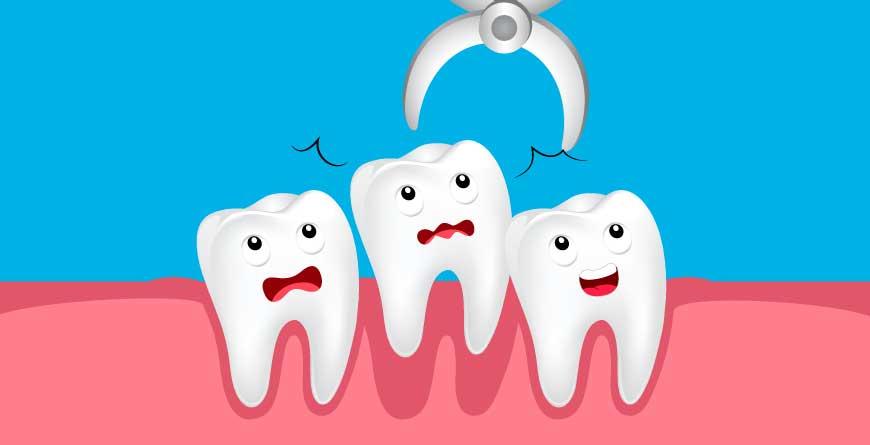 https://www.lifedentalspa.ro/wp-content/uploads/2021/10/estrazione-dentale-napoli.jpg