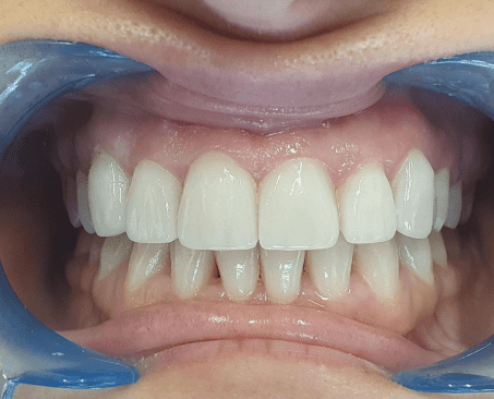 https://www.lifedentalspa.ro/wp-content/uploads/2021/10/unnamed.png
